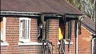 25-годишна със 70% изгаряния след като запали дома си
