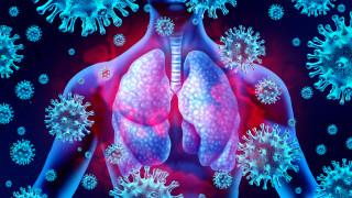 COVID-19: Смъртни случаи при лечение с хлорохин, някои болни са с тежки странични ефекти