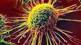 Два пъти повече болни от рак до 2030 г.