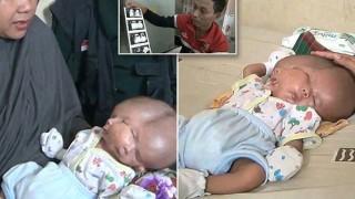 В Индонезия се роди бебе с две лица