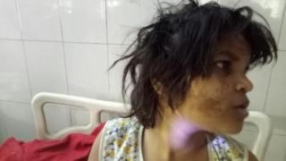 Живяло с маймуните момиче в Индия има поведение на маймуна