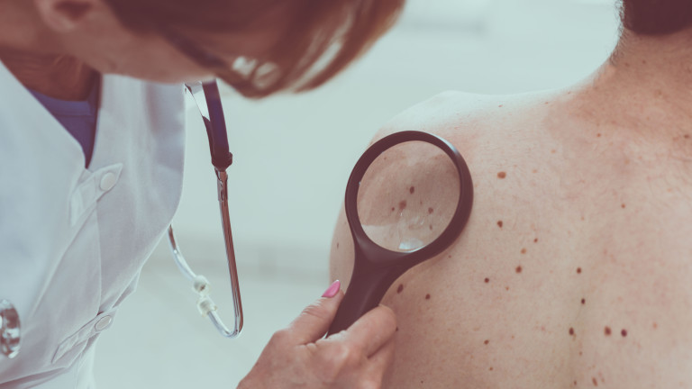 20% от заразените с COVID-19 проявяват кожни заболявания