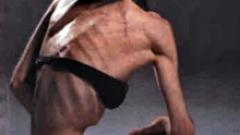 40 хил. българи страдат от анорексия