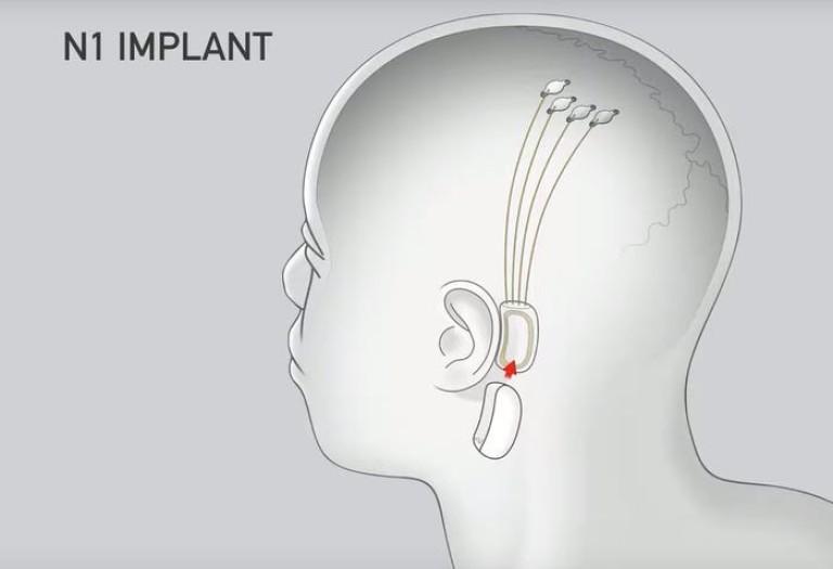 Илюстрация на имплантите срещу шизофрения и аутизъм