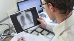 Безплатни прегледи за туберкулоза в цялата страна до петък