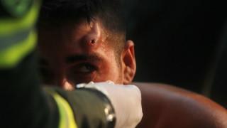 285 са пострадали на границата с Венецуела