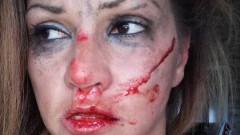 Лъже ли певицата Сани Алекса за боя?