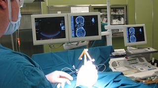 """Уникален апарат за прецизни мозъчни операции заработи в """"Токуда"""""""