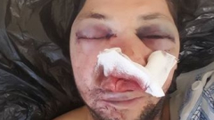 Двама с бухалки пребиха журналиста от Поморие Стоян Тончев