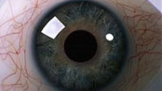 Нов метод за предотвратяване на ослепяването