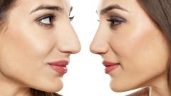 Защо толкова хора снимат носовете си и ги показват на всички