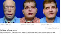 Какво се случва с мъжа с трансплантираното лице?