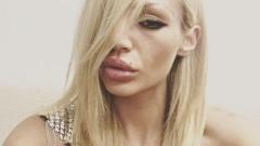 Силиконката Гентиана Халити плаши с анорексични снимки