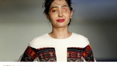 Индийка, залята с киселина, откри Седмицата на модата в Ню Йорк