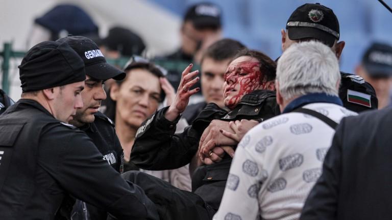 Зрението на ранената полицайка е застрашено