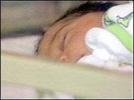 Бебе с 50% изгаряния след като падна в леген с гореща вода