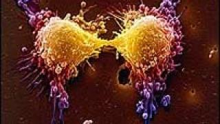 Онкологичните заболявания ще нараснат със 75% до 2030 г.