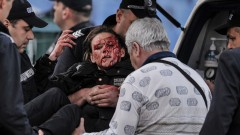 Ранени по време на дербито ЦСКА-Левски