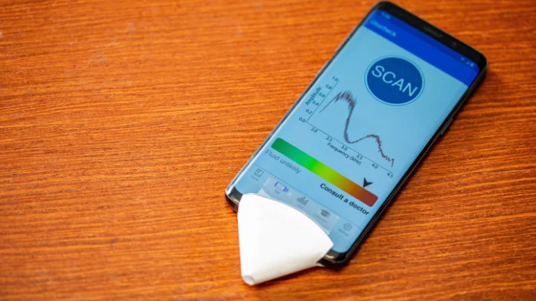 EarHealth - приложението, което диагностицира ушни инфекции