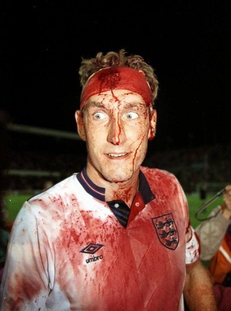 Представяте ли си такава гледка в модерните футболни времена? През 1989 година, на 6 септември, Англия играе мач с Швеция, от който трябва да вземе само точка, за да се класира за Световното първенство следващата година. Тери Бътчър получава доста сериозен удар в главата, но въпреки това остава на терена и дори е заснет на няколко пъти как се смее на случилото се.