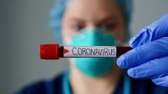 Броят на жертвите от COVID-19 в света надхвърли 700 000
