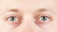 Виновниците за синдрома на сухото око