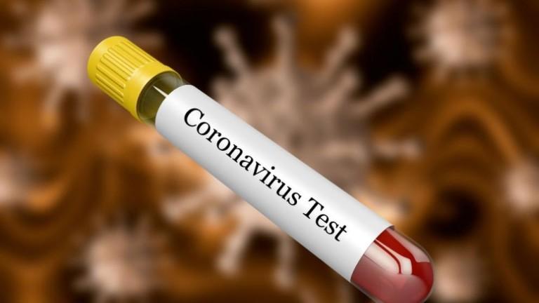 Към тази сутрин няма доказан случай на коронавирус COVID-19 в