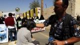 Епидемия от холера в Йемен