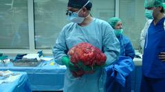 15 кг. тумор от тялото на пациент извадиха във ВМА