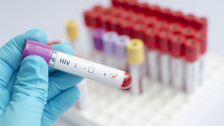 С над 50% са се увеличили случаите на СПИН у нас за година