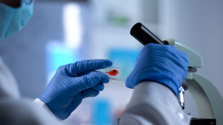 Съединението, което може да унищожи вируса ХИВ