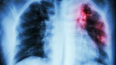 Ново лечение на туберкулоза намалява приема на хапчета с две трети