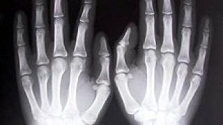 Подготвят фармакоикономически анализ на лечението на остеопороза