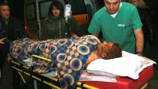 Почина един от обгорените в Скравена