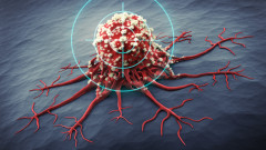 Ракът се появява по-рано, отколкото предполагаме