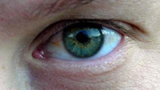 """""""Торбичките"""" под очите най-често са признак на заболяване"""