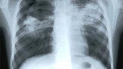 28 болници преглеждат безплатно за туберкулоза