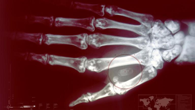 Преди 10-15 години идеята за имплантиране на чипове в живи