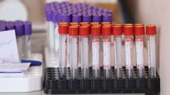 Само 22 души за седмицата във Варна са имали антитела за кръвна плазма