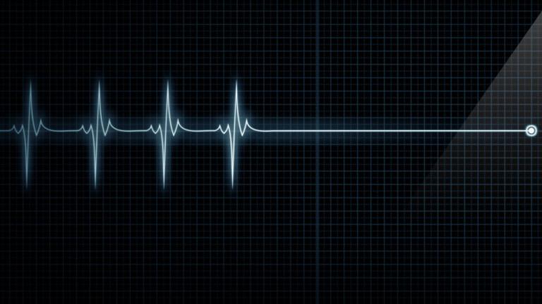 Почина шофьорът на тир, врязал се в цех за мебели в Димитровградско