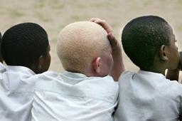 8 смъртни присъди в Танзания заради убийства на албиноси