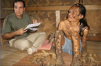 Човек-дърво в Индонезия!