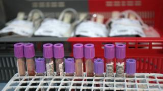 Отпускат 1,5 млн. лева за създаване на база данни на кръводарителите у нас