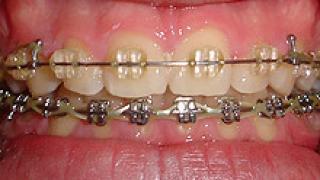 В Златни пясъци се провежда конгрес на стоматолозите