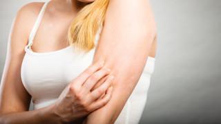 Увеличаване на онкозаболявания на кожата отчитат лекари