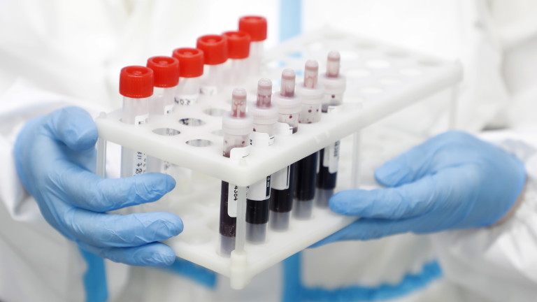 Няма нови заразени с COVID-19 в Русе, 119 са вече излекуваните