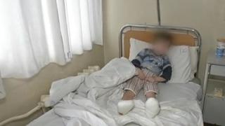 5-годишно дете от приемно семейство е прието в болница с измръзване