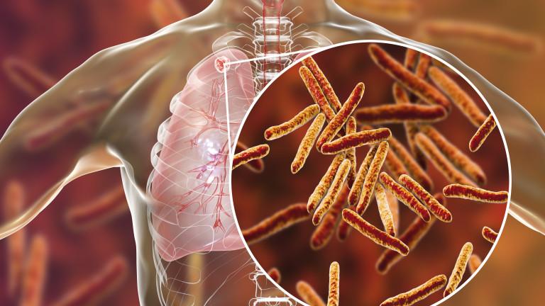Пробив в борбата с туберкулозата - учени разработиха инструмент за предвиждане