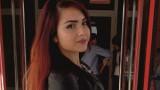 В Бургас оперираха успешно момиче със Синдрома на лешникотрошачката