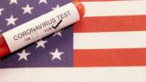 Коронавирус: Над 35 млн. заразени по света, САЩ с близо 210 000 починали
